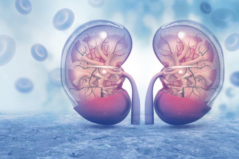 Kidney Stone Stent