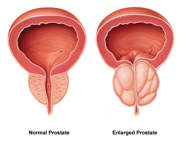 What You Should Know About Your Prostate (Men Only)