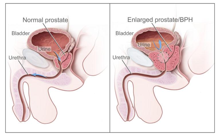Benign Prostatic Hyperplasia: Symptoms, Causes and Treatments