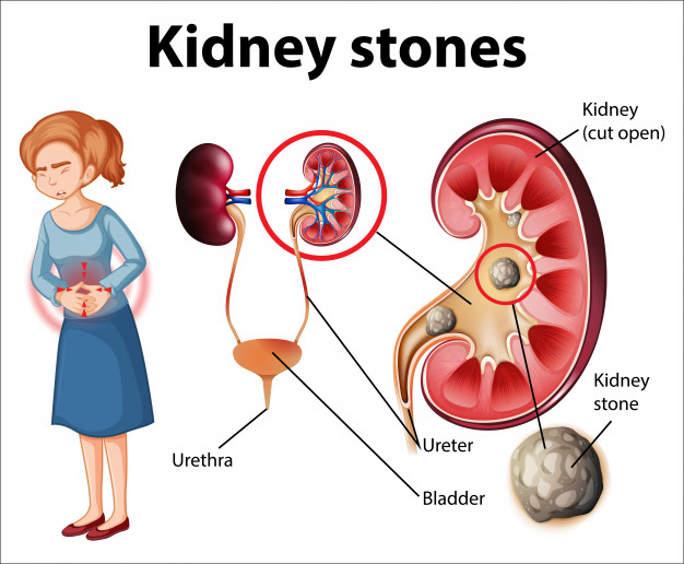 5 things that can help you take a pass on kidney stones.
